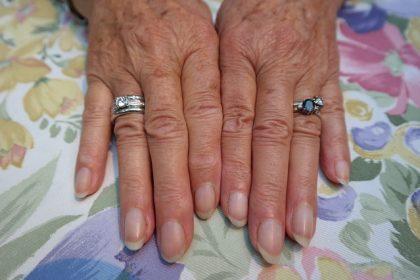 変形した指