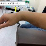 日曜日の急患『手首の骨折(掌側バートン骨折)』