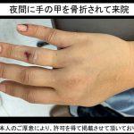 『手の甲を3本骨折⁉』夜間の急患対応
