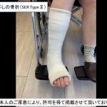 日曜日に来院された『足首の骨折』