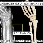 なぜ、固定しても骨折部が痛むのか⁈『初期処置の重要性』
